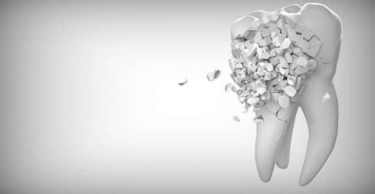 Cómo cuidar tu salud dental.